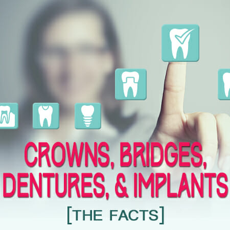 The Facts About Crowns, Bridges, Dentures, and Implants