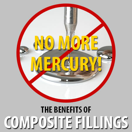 The Benefits of Composite Fillings