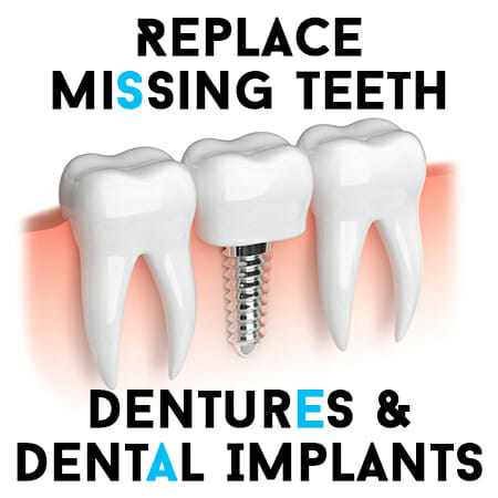 Replace Missing Teeth with Dentures and Dental Implants